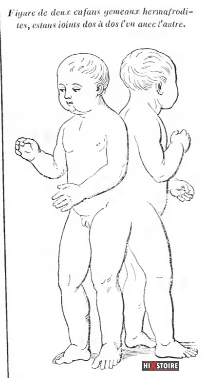 Figure de deux enfants gémeaux hermaphrodite joints dos à dos l'un avec l'autre / Ambroise Paré (1509?-1590)