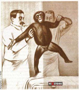 La greffe de testicules de singe illustrée dans le magazine Guérir du 13 aout 1935.