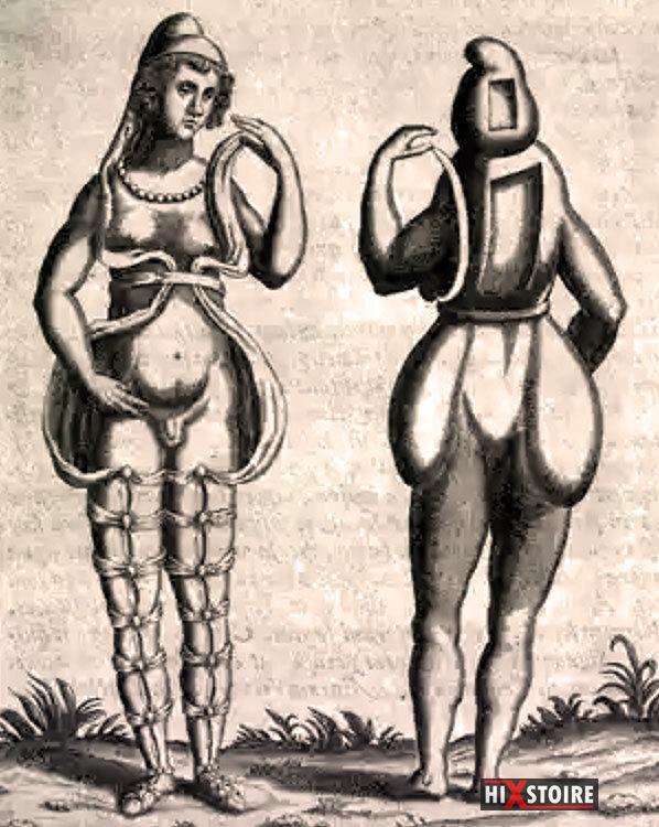 Hermaphrodite, Gravure vers 1690, Auteur inconnu.